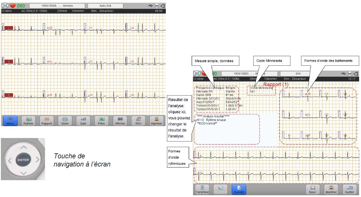 image écran ECG pro Wepp
