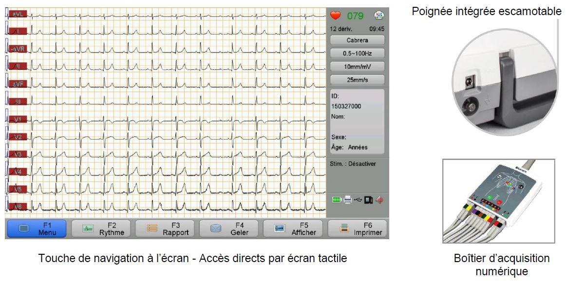 image écran electrocardiogramme Newtech E12 pro